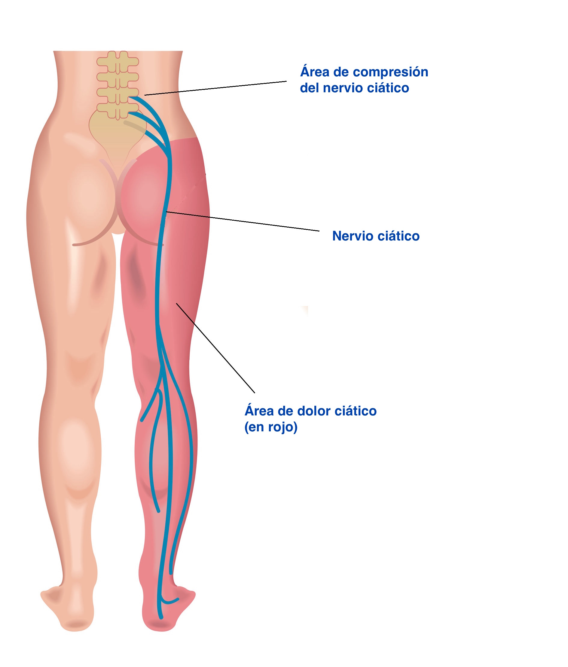 qué causa tu nervio ciático