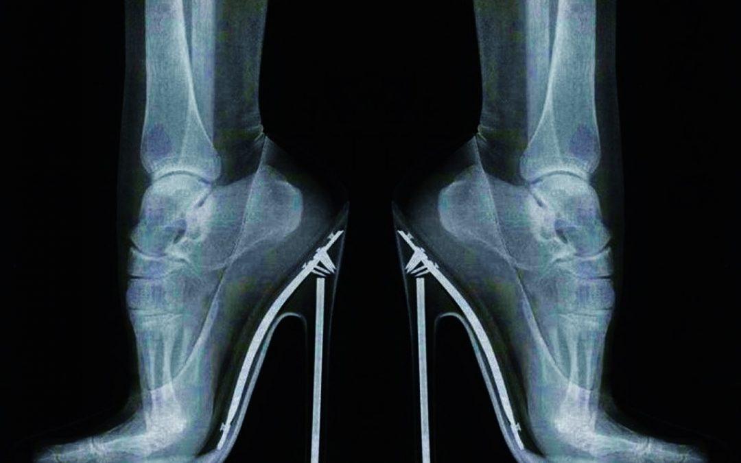 Los tacones generan más que dolor de pies