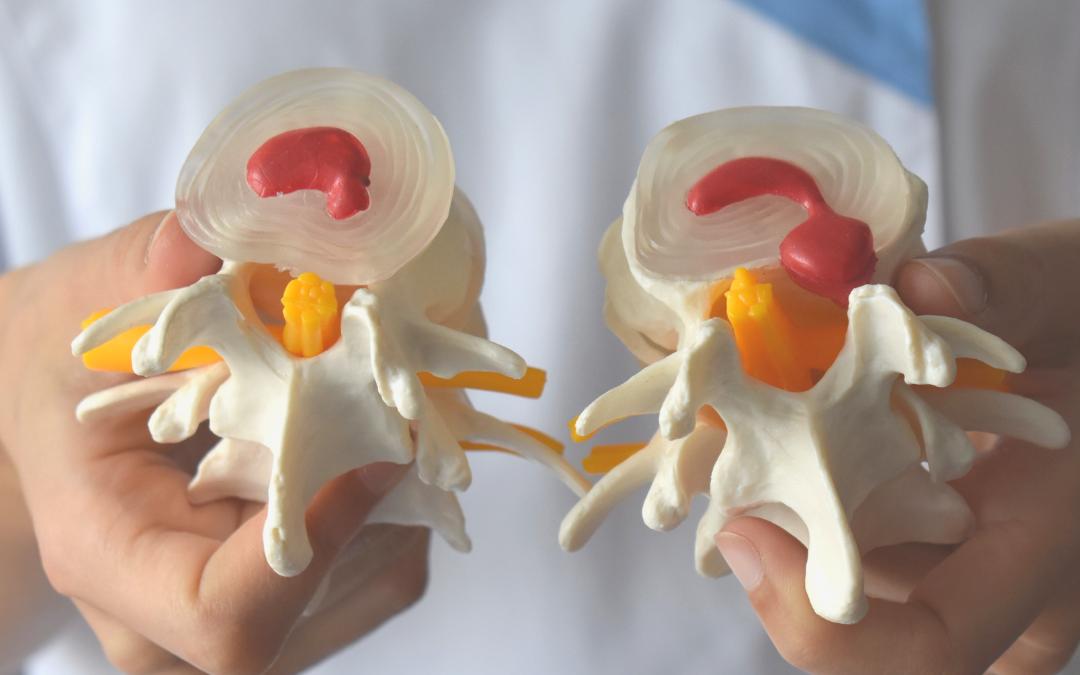 Hernia o protusión discal diferencias