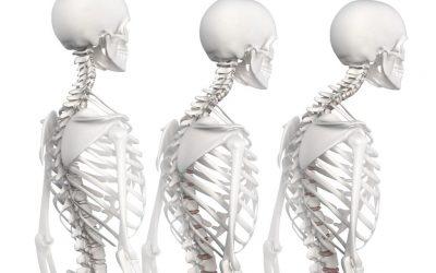 Hipercifosis y quiropractica