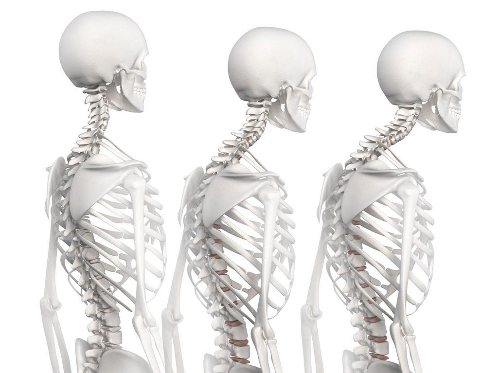 Hipercifosis correccion de postura